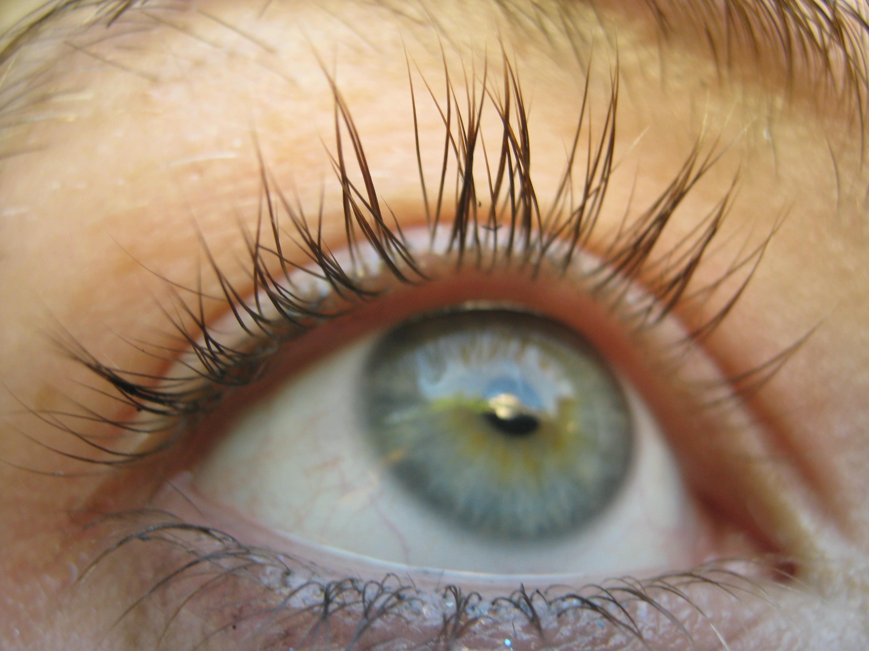 Double Eyelashes Distichiasis | www.pixshark.com - Images ...