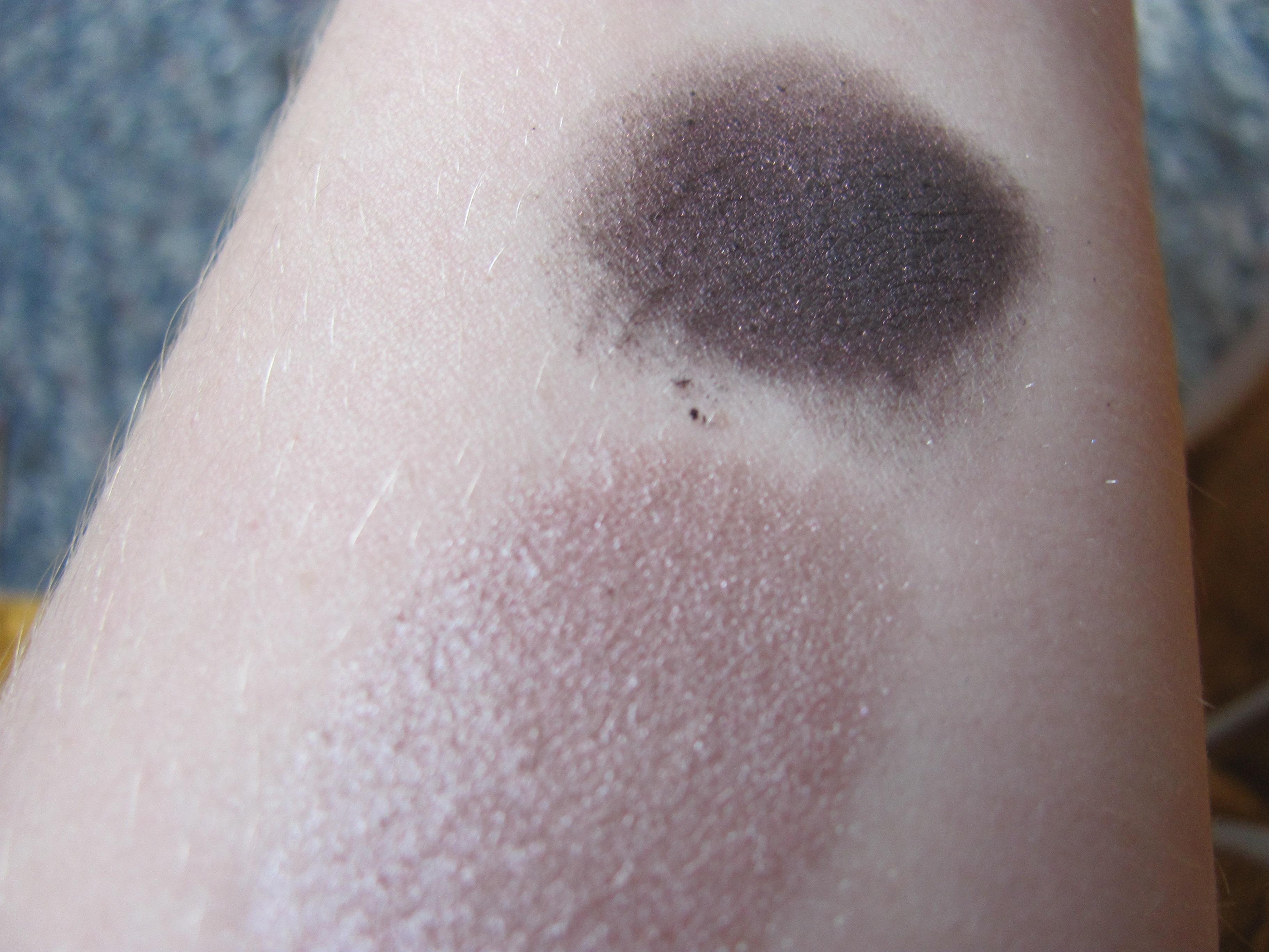 Gray Spots On Skin - Doctor insights on HealthTap